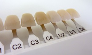 Dental shade guide